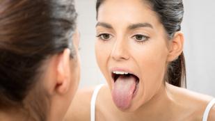 Nyelvünk izmai tényleg fáradhatatlanok, de őket is edzésben kell tartani