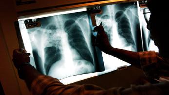 Tárgyalótisztek tesztelik, hogy az orvosok elfogadják-e a hálapénzt