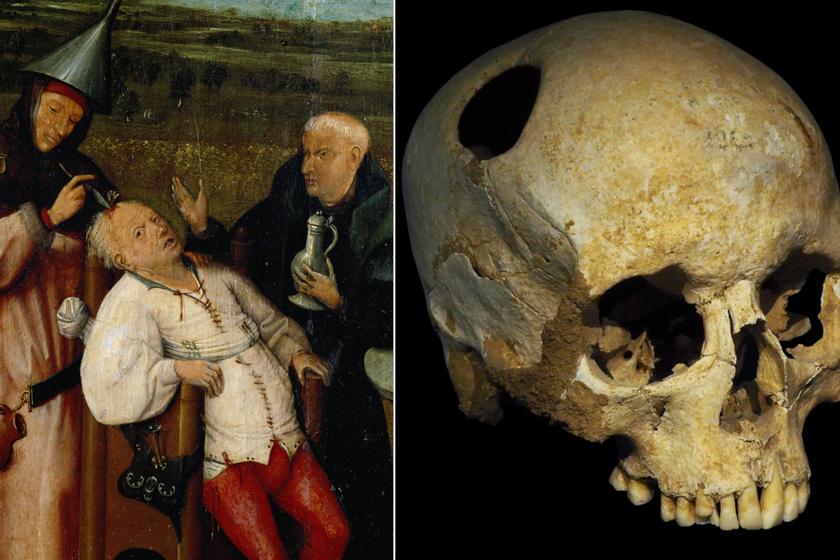 A koponyalékelést már a kőkortól használták gyógyításra: a honfoglaló magyaroknál is elterjedt gyakorlat volt