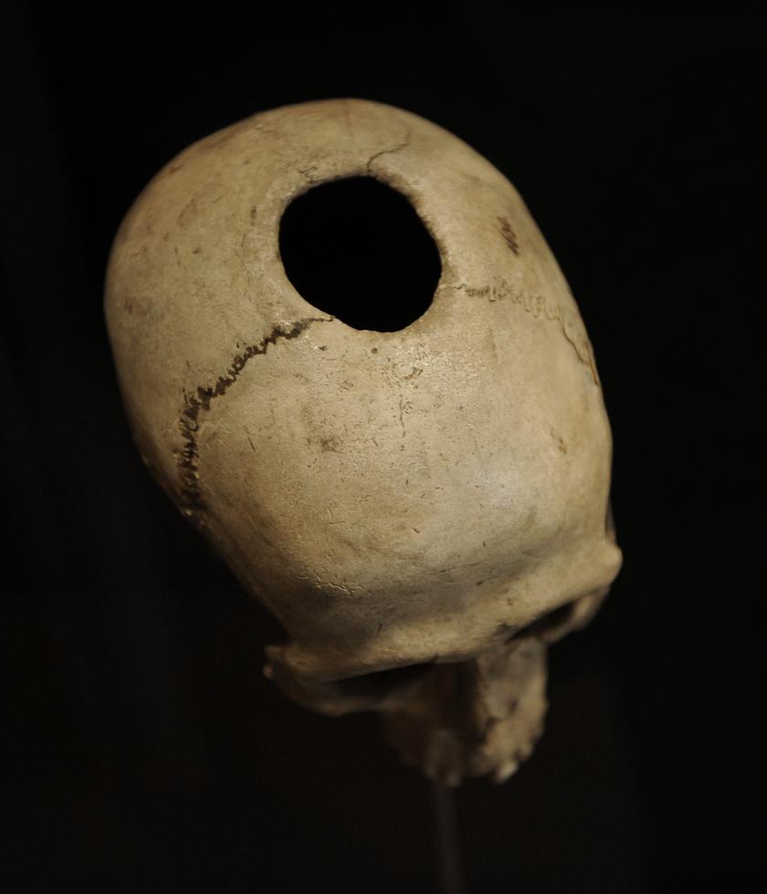 Lékelt koponya a neolitikumból.