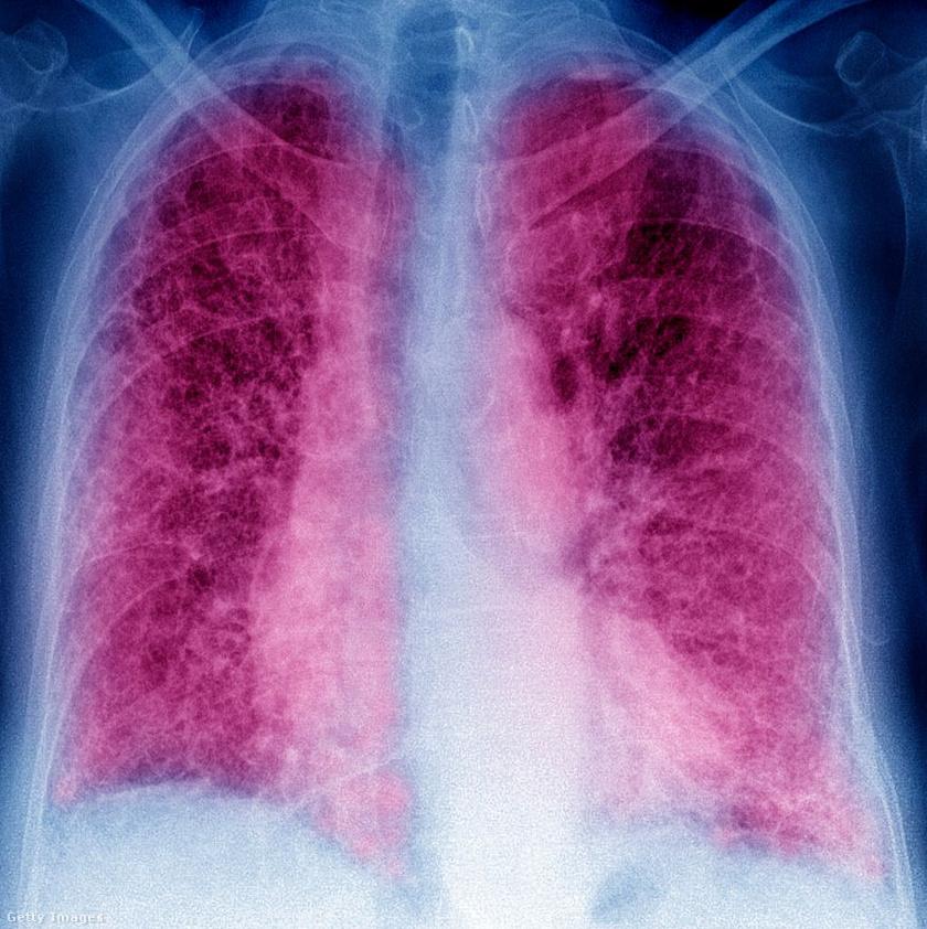 Tüdőfibrózisról készült röntgenkép.