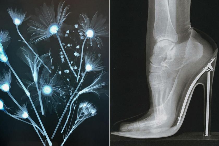 Bámulatos a világunk a röntgen alatt - Növényeket és különleges állatokat is mutatunk