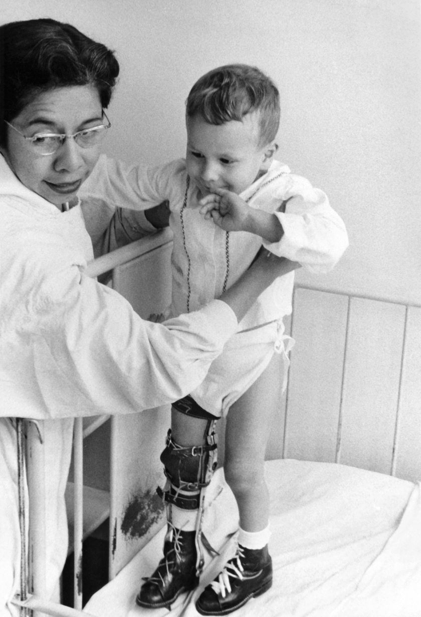Járványos gyermekbénulásban szenvedő apróság Costa Ricában, 1955-ben.