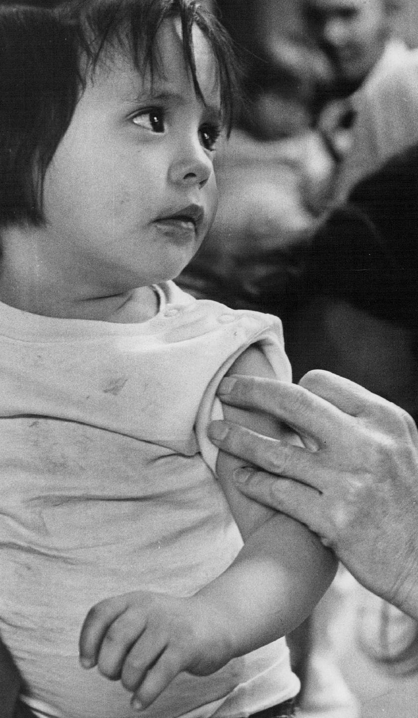 Kanyaró-rózsahimlő kombinált oltást kap egy gyermek az 1970-es években.