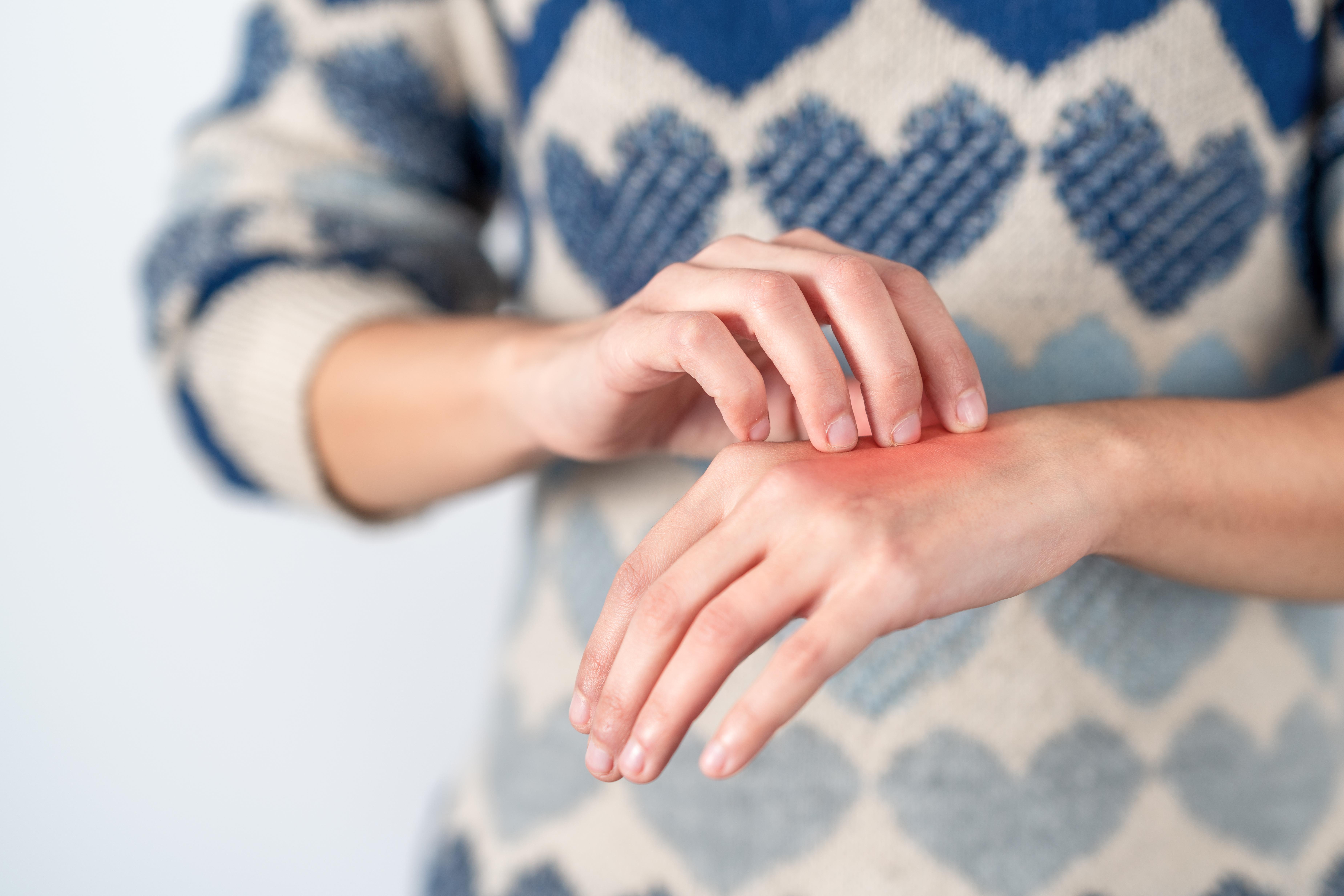 legyengült fekély az ujjak között