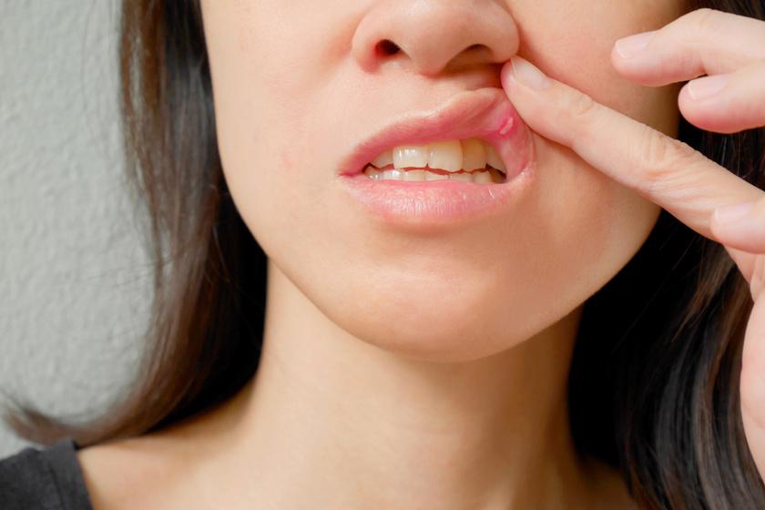 Az afta, azaz a szájüreg nyálkahártyáján megjelenő kisebb fekély időről időre sokak életét keseríti meg. Kialakulásában szerepet játszhat a stressz, a legyengült immunrendszer, sérülés, illetve tápanyaghiány is, jellemzően a vas, a folsav, a cink és a B12-vitamin hiánya.
