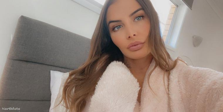 Egy másik fotó Evelynről, aki 20 évesen tudta meg, hogy két vaginája van.