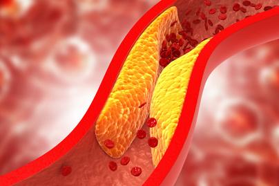 trombózis nyitó