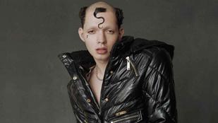 Ez a texasi fiatal a Vogue-ig jutott egyedi frizurájával és leborotvált szemöldökével