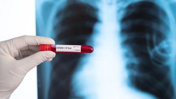 Orvosi csoda: szülés után végeztek kettős tüdőátültetést egy koronavíruson átesett nőn