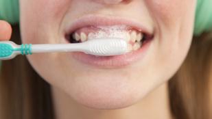 Reggeli előtt vagy után mossak fogat? A szakember megmondja