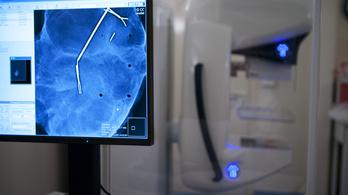 A pandémia miatt kétszer annyian halhatnak meg mellrákban