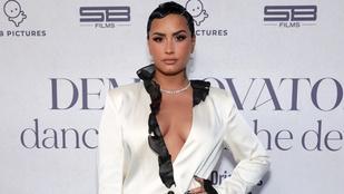 Demi Lovato megvakult a túladagolásakor, azóta sem nyerte vissza teljesen a látását