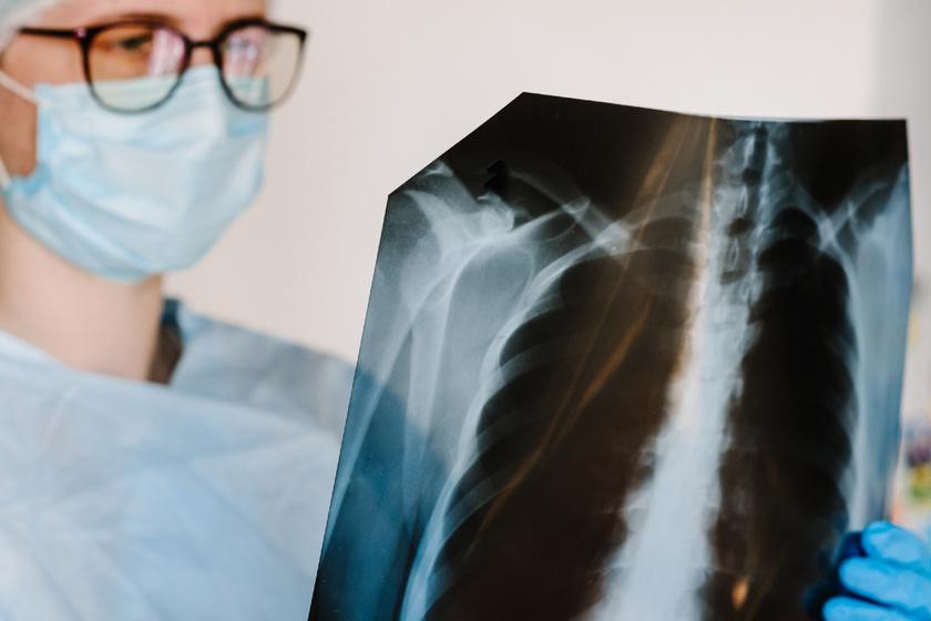 Nem csak a dohányosokat fenyegeti a COPD: gyorsan elöregedik a tüdő tőle