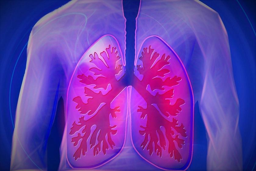 COPD ILLUSZTRÁCIÓ (1)