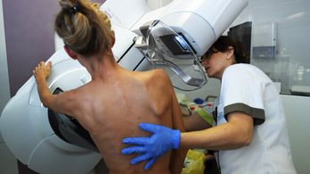 A járványhelyzet nem befolyásolja a rákszűrések hatékonyságát