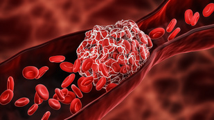 5 + 1 ok, amitől trombózisod lehet – igen, a dohányzás is köztük van