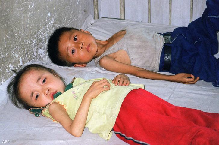 Két alultápláltságtól szenvedő gyermek fekszik egy észak-koreai gyermekkórházban.