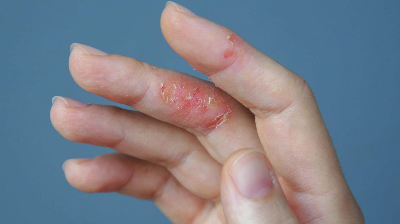 dermatitisz nyitó