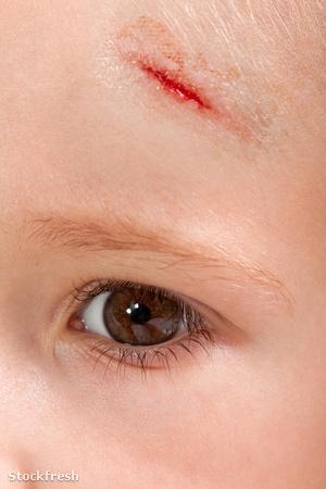 stockfresh 329243 wound-child sizeM