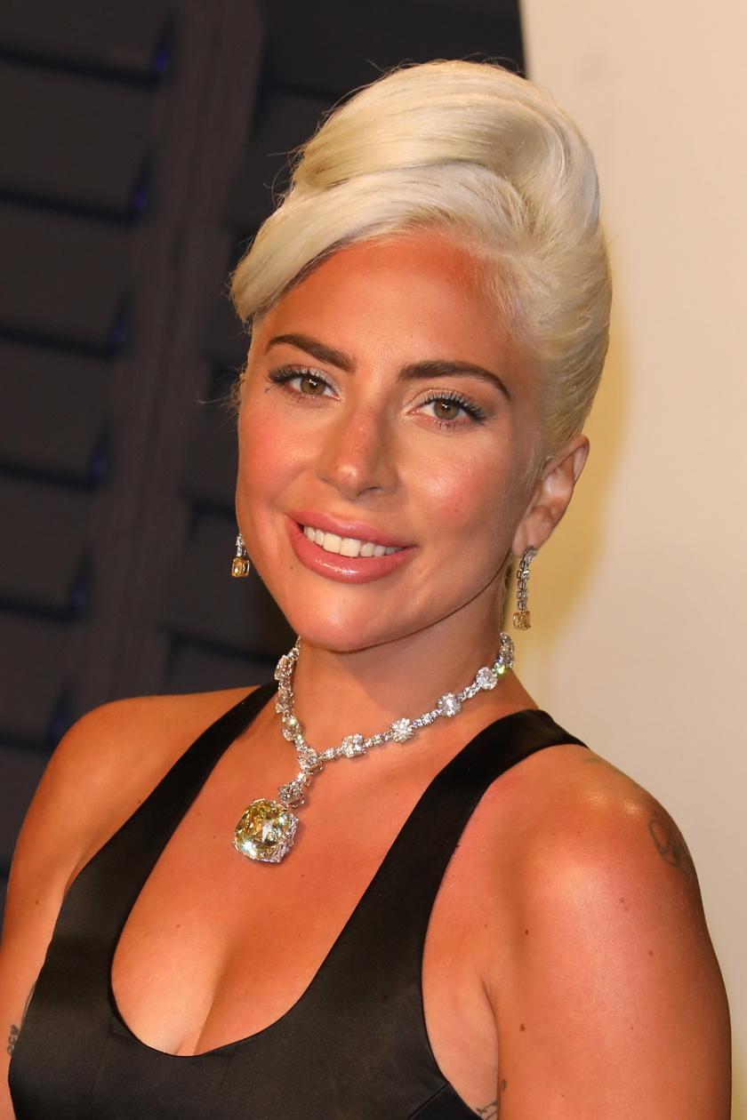 """Lady Gagának a karrierje kezdetén azt mondták, meg kellene műttetnie az orrát ahhoz, hogy igazán sikeres lehessen. Nemet mondott, és hozzátette, imádja """"olaszos"""" orrát. Ma már az egész világ ismeri. Nemcsak énekesnőként, hanem színésznőként is bizonyította tehetségét."""