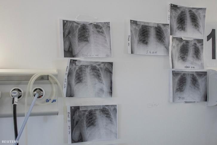 Tüdőröntgen-felvételek egy belgrádi kórházban 2021. április 7-én