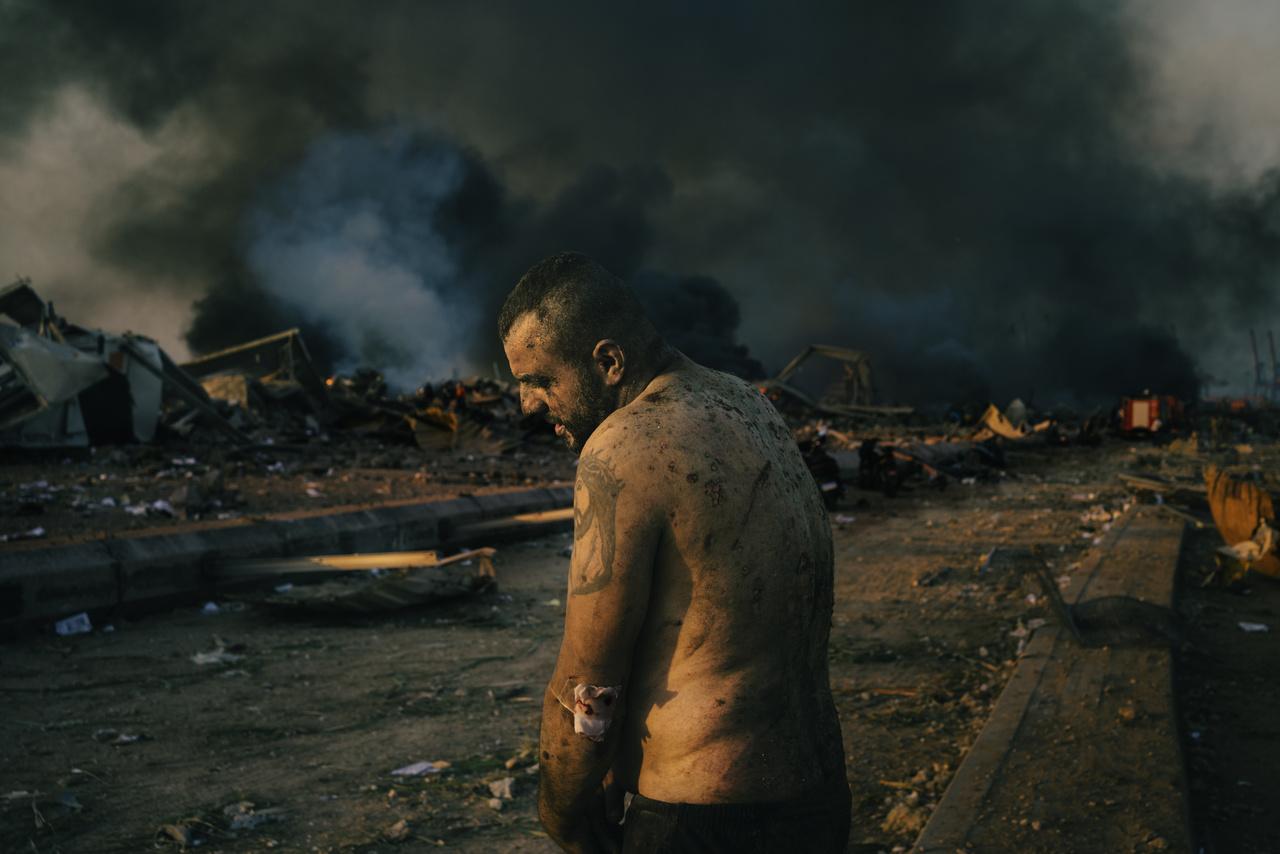 Lorenzo Tugnoli sorozatából: egy sérült férfi, a bejrúti robbanás közelében, a raktárépületek oltása közben.