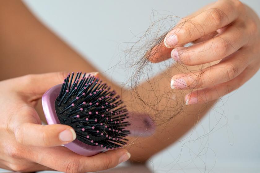 Covid-fertőzés után akár 6-9 hónapon át tarthat az intenzív hajhullás: mikor kell orvoshoz fordulni?