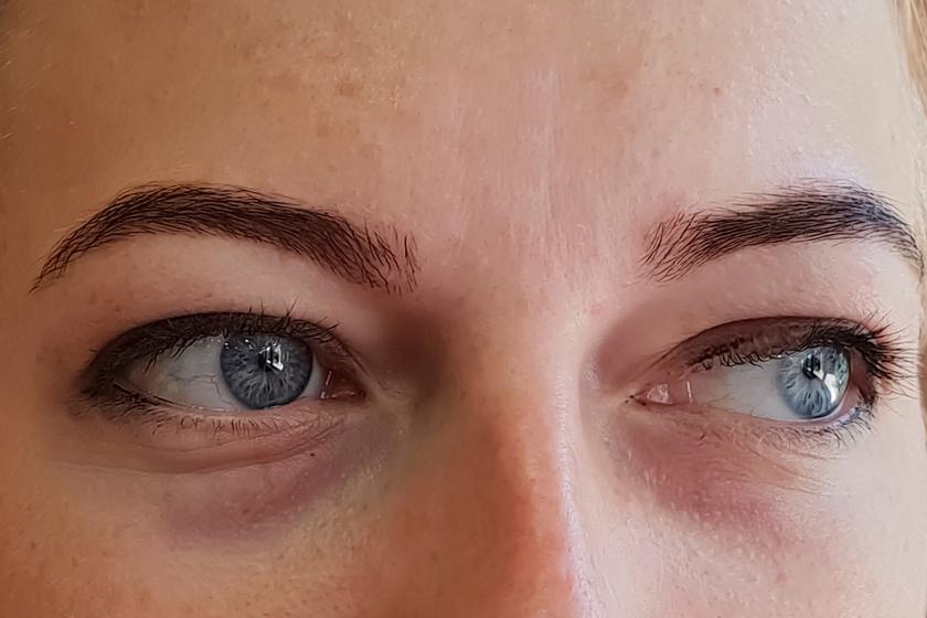 A szem alatti sötét karikák nem csak a fáradtságra, kialvatlanságra hívhatják fel a figyelmet, vashiányos vérszegénység jelei is lehetnek. Sokaknál ugyanakkor alkati sajátosság a táskás szem. A sötét karikák mellett fontos és jellemző tünet a sápadtság.