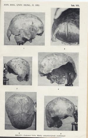 A Csokonai Vitéz Mihálynak tulajdonított koponyatöredék fotója