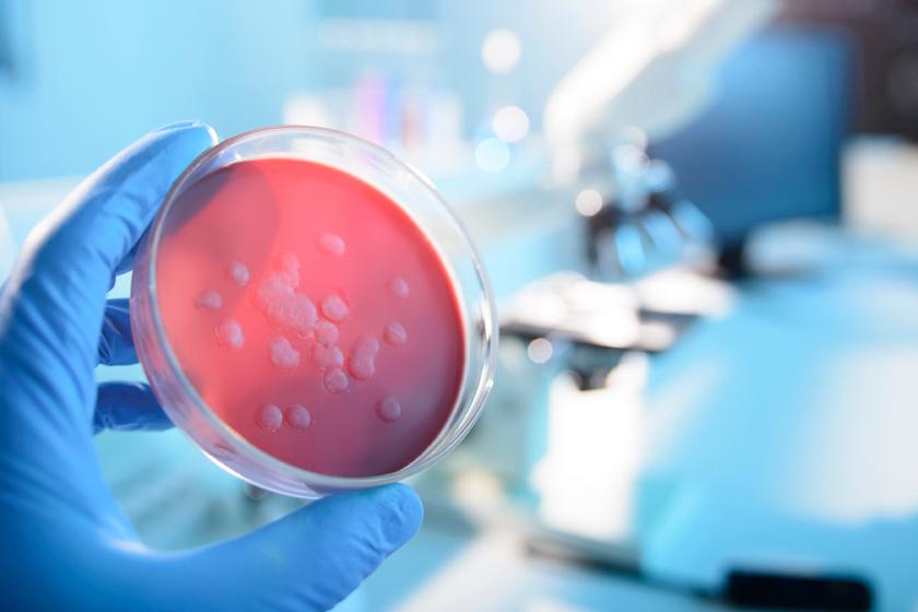 Sokan már antibiotikum-rezisztens baktériumokkal fertőződnek meg: magyar kutatók új modellt dolgoztak ki ellenük