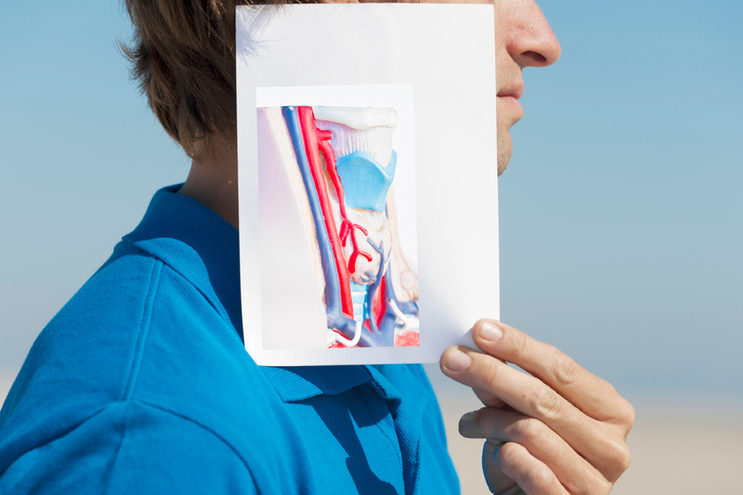Betegségek, amik növelik a stroke kockázatát: ez az ultrahangos vizsgálat életet menthet