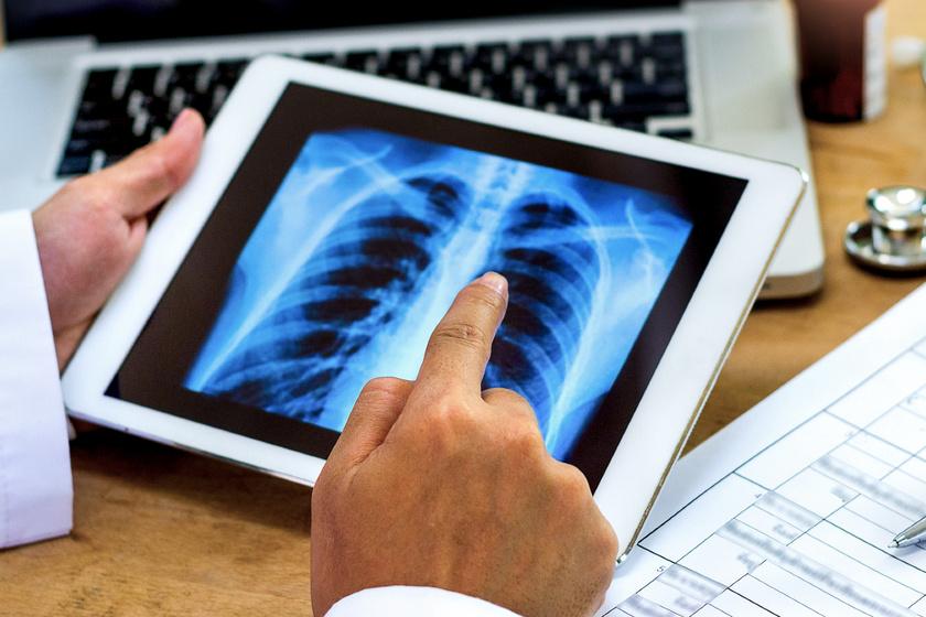 3 ok, ami az asztmaellenes gyógyszer hatását befolyásolja: a COPD elleni szerekre is igaz