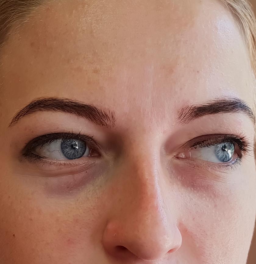 karikás szem