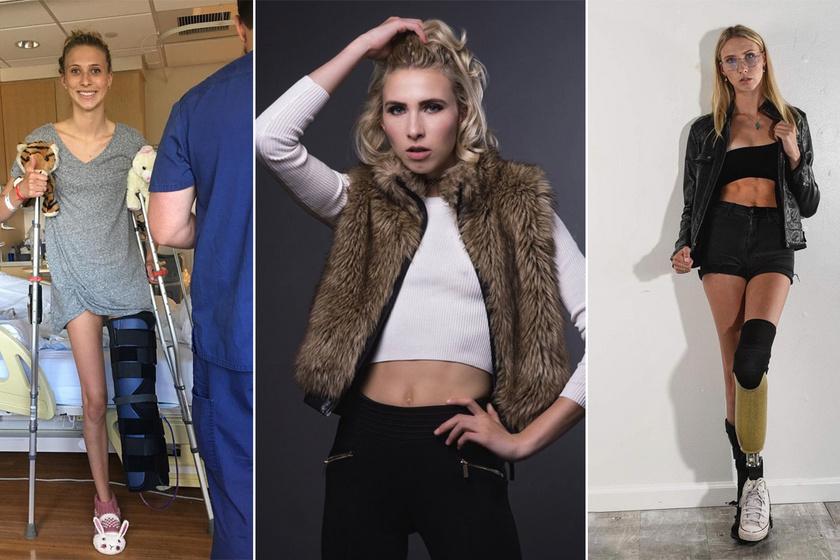 Balesete után elvesztette mindkét lábát, most modellként tündököl: a 24 éves Lexie sosem adta fel a küzdelmet