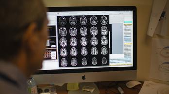 Az Alzheimer-kór négy altípusát azonosították