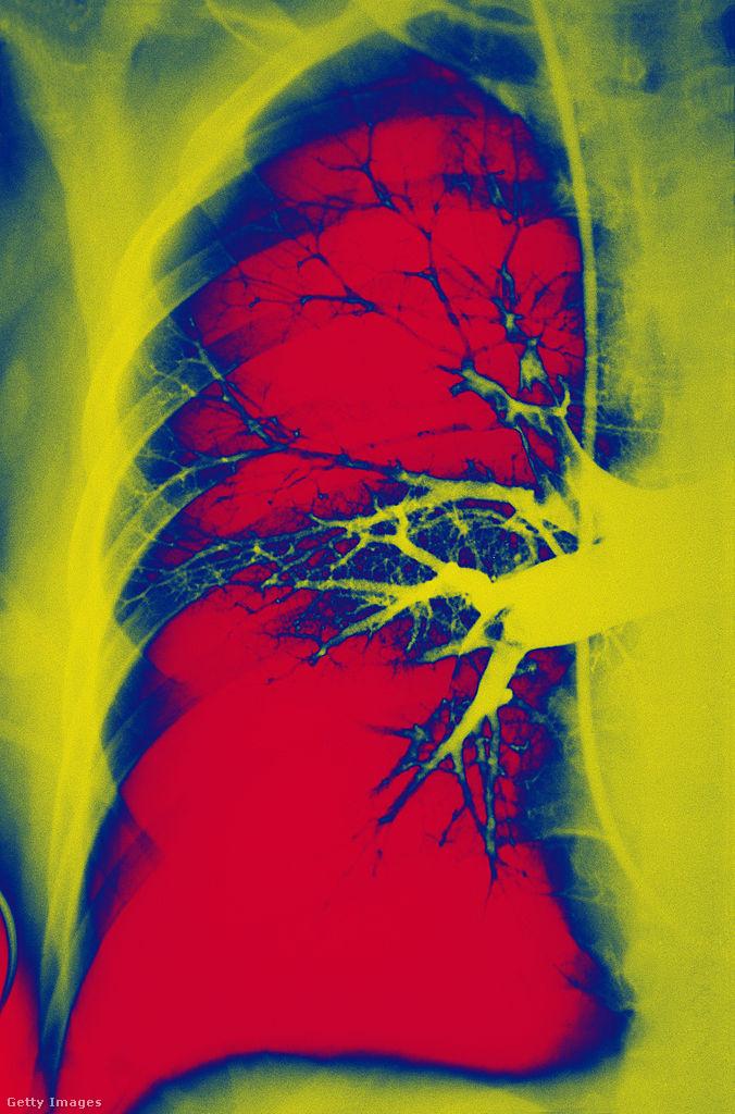 Röntgenfelvétel a tüdőembóliáról.