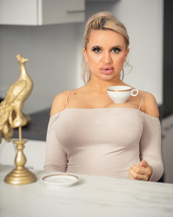 A műtét hatalmas önbizalmat adott Jessynek, aki hamar érdeklődni kezdett további kozmetikai eljárások iránt