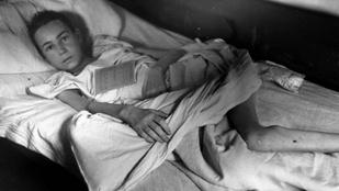 Akár egy évig is eltartott, mire meggyógyították a lágerekben csonttá fogyott betegeket