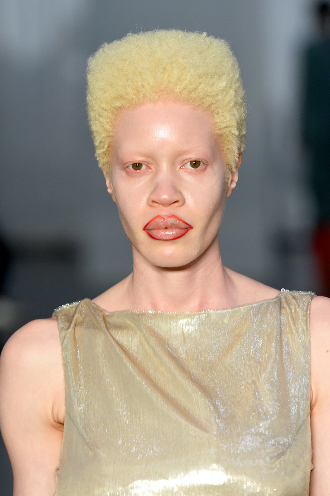 Diandra Forrest egy afroamerikai albínó modell