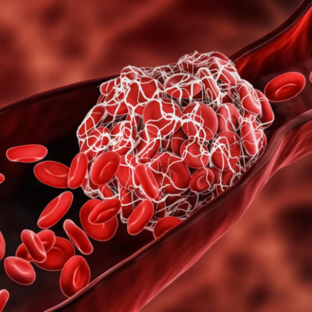 A Covid-19 első tüneteként is jelentkezhet stroke: a fiatalokat is érinti a súlyos kockázat