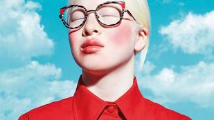 Albinizmusa miatt hagyták el gyerekként, és emiatt is kapták fel modellként