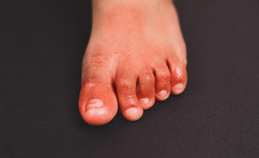 covid lábujj gyulladás