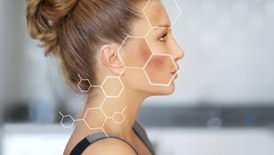 A barna ötven árnyalata – Harc a hiperpigmentáció ellen
