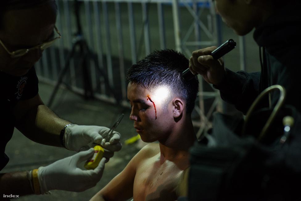 Vidéken, például Csiang Maiban, a küzdelmek sokkal nyersebbek és keményebbek. A képen az egyik gyerekharcos rezzenéstelen arccal tűri, ahogy érzéstelenítés nélkül összevarrják a halántékán tátongó sebet.