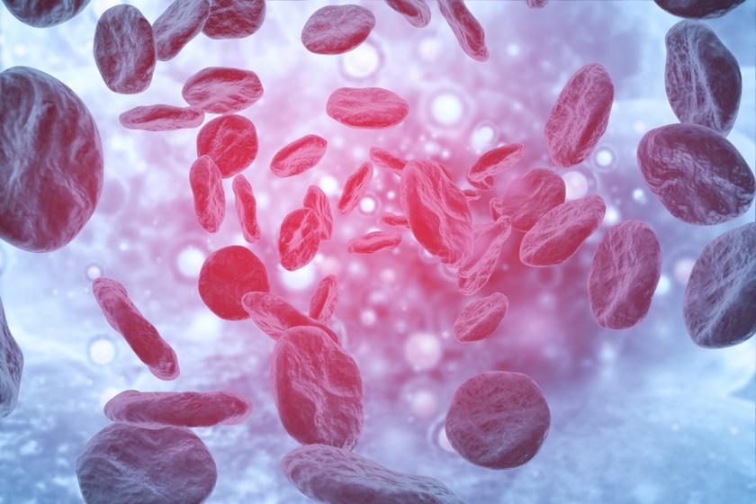 Miről ismerhető fel a vérzékenység, és kiket érint? 5 óriási tévhit a betegségről