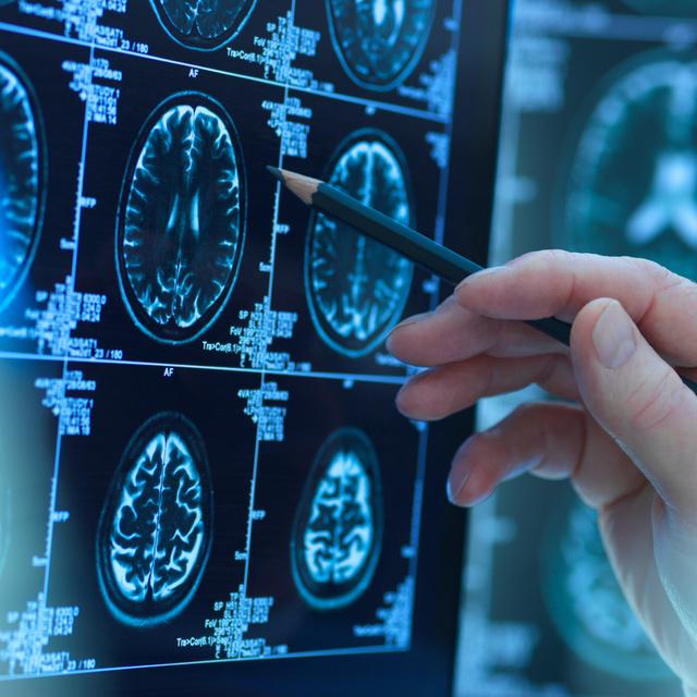 A koronavírus az idegrendszert is megtámadhatja: sokkal kiterjedtebb hatásai vannak, mint más vírusfertőzéseknek