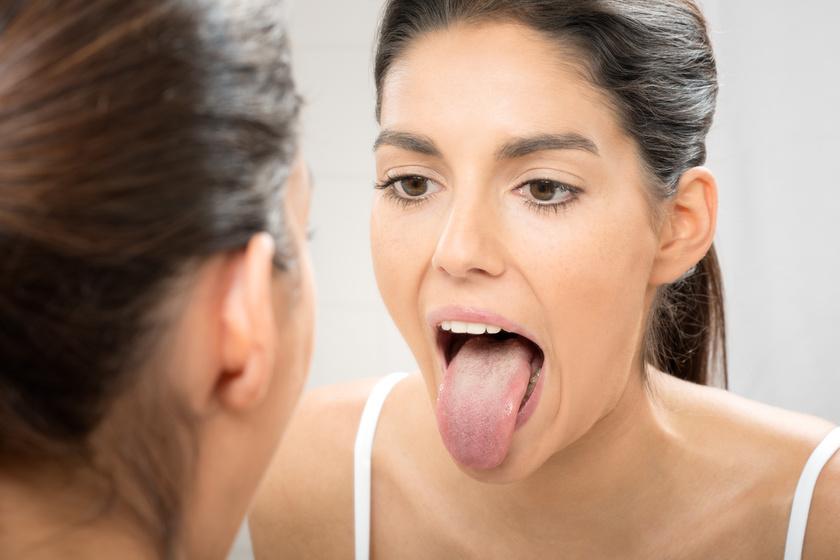 Mire utalhat a lepedékes nyelv? 8 gyakori elváltozás és a lehetséges okok