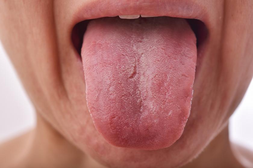 A fehér lepedék a nyelven, főleg a hátsó részén normális, amennyiben nem egy vastag rétegről van szó. A fehér bevonat elégtelen szájhigiénia, a baktériumok felszaporodása és megfázás mellett is előfordulhat. A nyelv tisztítását ajánlott mindennap elvégezni.