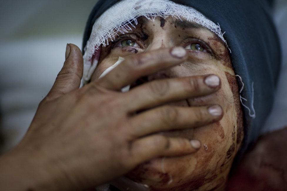 Hír kategória, egyedik - Első hely Egy szíriai nő mutatja sérüléseit, miután házukat eltalálta a Szíriai Hadsereg rakétája. A nő a támadásban elvesztette férjét és két gyermekét.